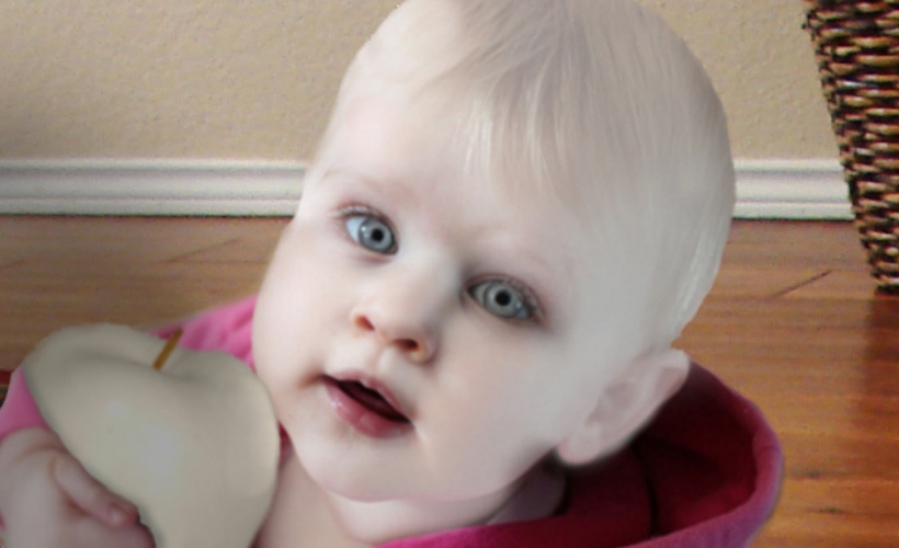 oculocutaneous-albinism-baby