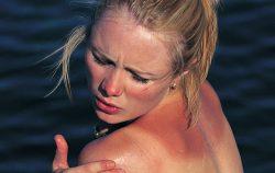 Sunburn - Reductress