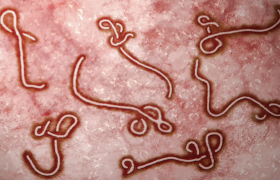 Pretty Ebola Strand Designs to Pin on Your Disease Board