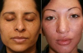 Facial Peel Reveals Entirely New Face