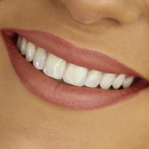 6-smile