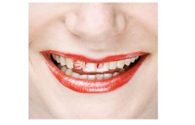 5 Bold Red Lipsticks To Empower Your Front Tooth